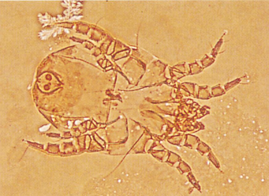Enlarged flour mite